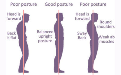 How can remedial Massage therapy help poor posture?
